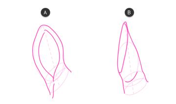 how to draw zebra ears 3
