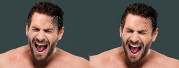 forehead cloning