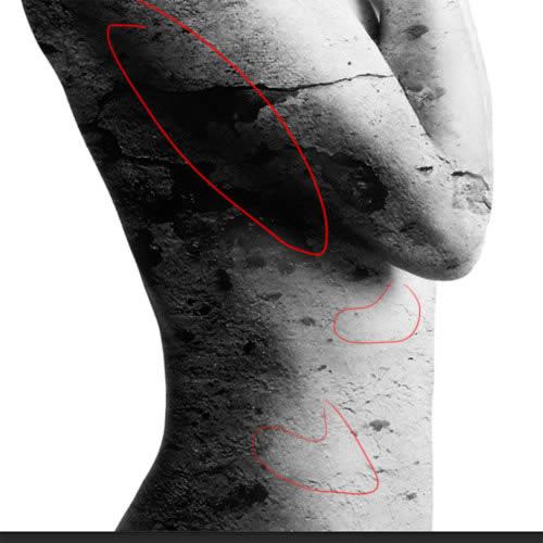 Delete dark spots on the belly