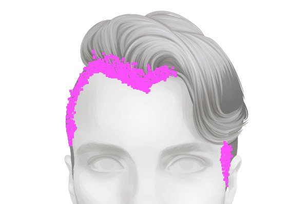 Softening the hair line