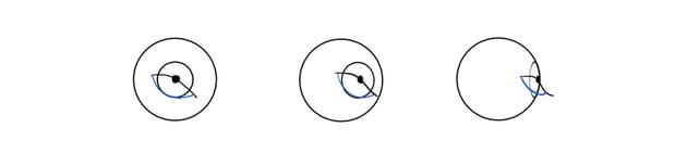 lower eyelid rim rotation