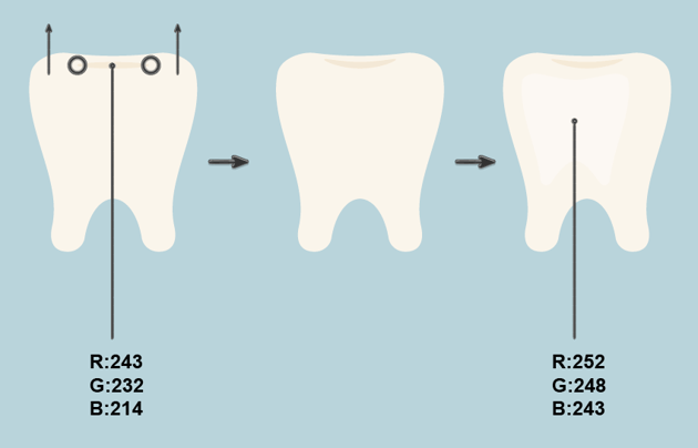 adding the volume to the tooth icon