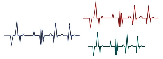 vector waveform heartbeart