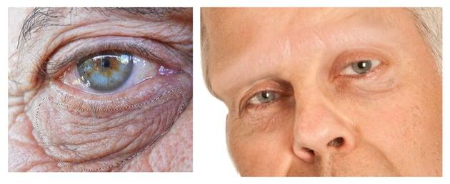 Add Wrinkles Underneath Frankensteins Eyes