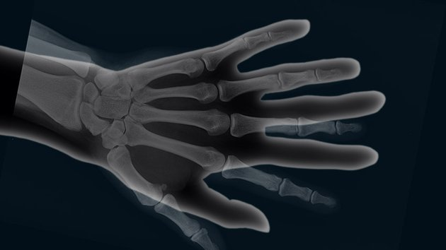 Move the bones layer above the hand image
