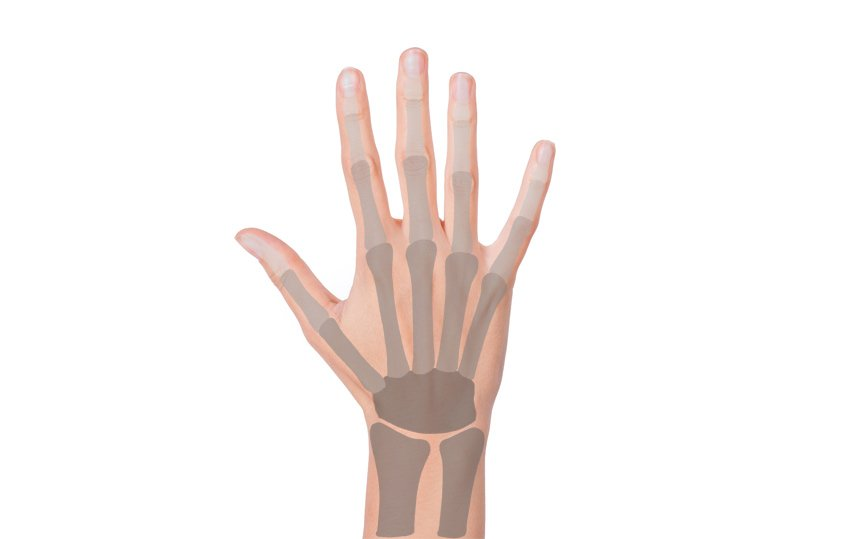 hand bones overlay