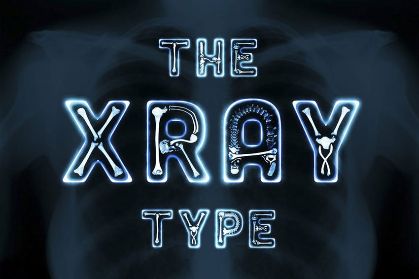 The X-Ray Type