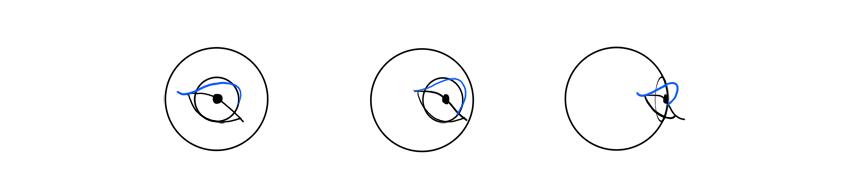 upper eyelid rim rotation