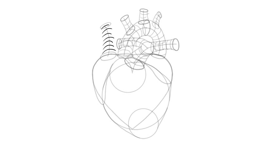 dibujar la forma 3d de la vena cava