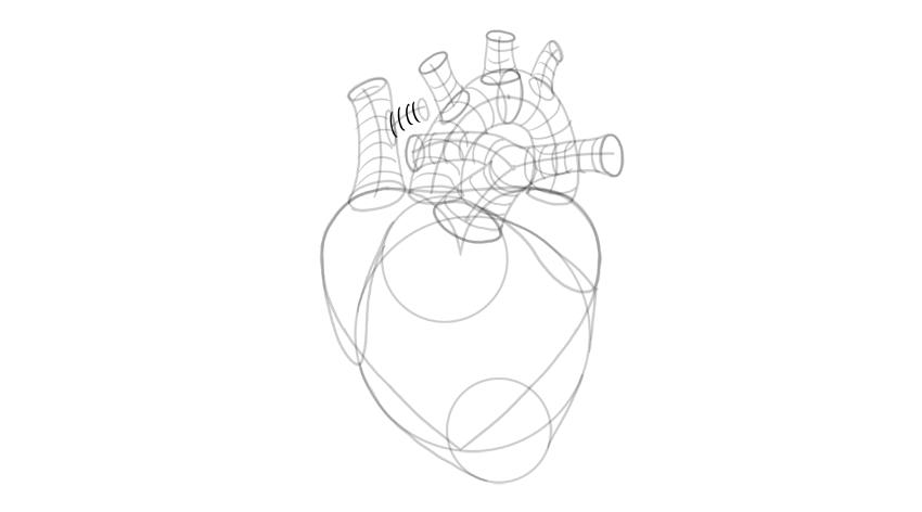 dibujar la forma 3d del lado de la vena cava