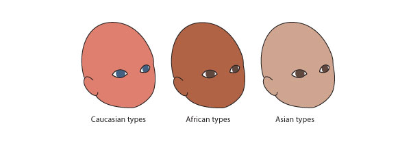 Newborn birth coloration