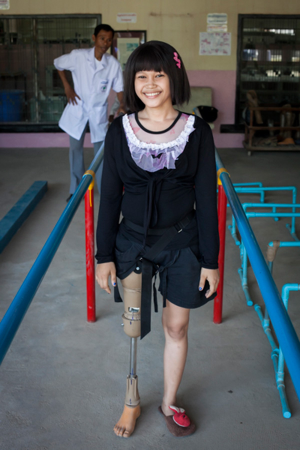 A Cambodian girl learns to walk with her new prosthesis in Kien Khleang Rehabilitation Center