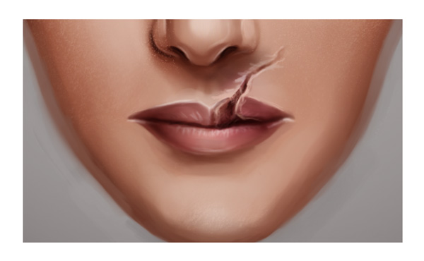 Painting Shadow for a Lip Scar in Adobe Photoshop